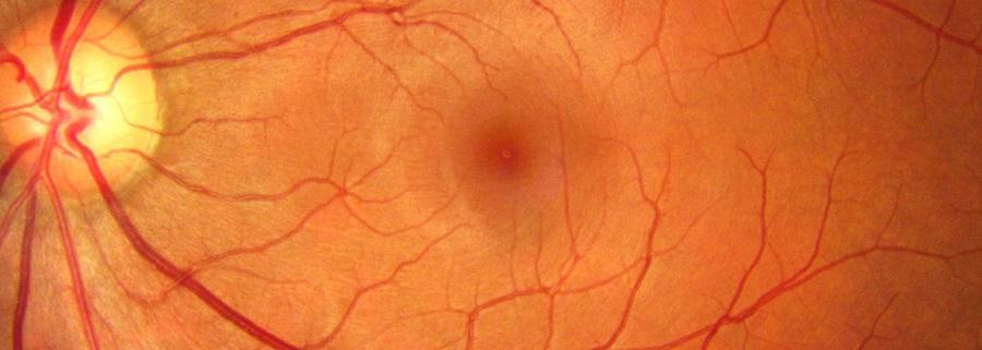 Ангиоспазм сосудов сетчатки глаза - чем опасна, симптомы и методы ...
