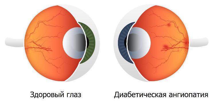 Диабетическая ангиопатия сосудов сетчатки глаза - признаки и ...