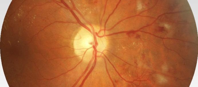 Диабетическая ретинопатия сетчатки глаза