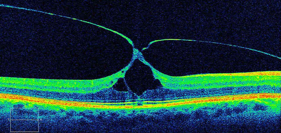 эпиретинальный фиброз глаза операция стоимость