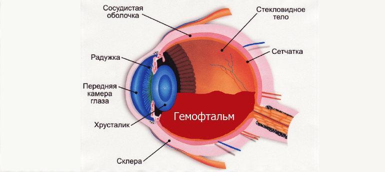 Гемофтальм глаза (частичный и тотальный) - эффективное лечение ...