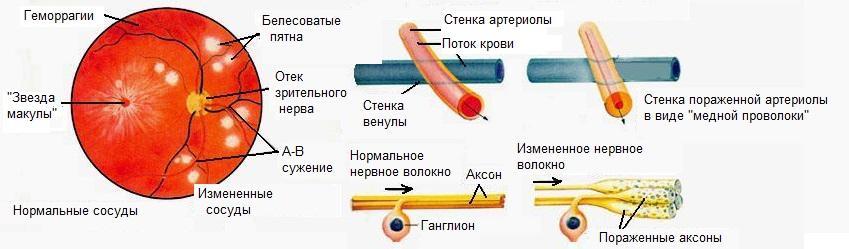 Что такое Ангиопатия сетчатки по гипертоническому типу?