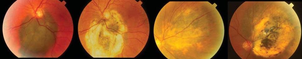 Хориоидальная меланома сетчатки