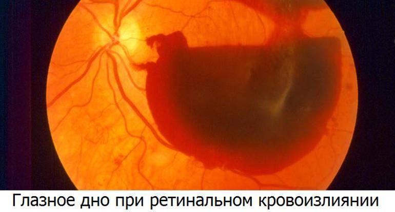 Симптомы и причины ретинального кровоизлияния в сетчатку