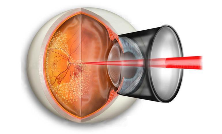 Лазерная коагуляция (укрепление) сетчатки без боли и по лучшим ...