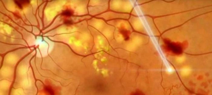 Лазерное лечение заболеваний сетчатки
