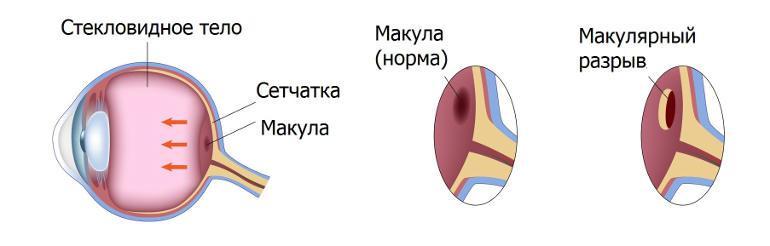 Макулярный разрыв сетчатки глаза