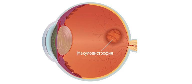 Возрастная макулодистрофия сетчатки глаза