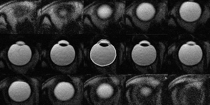 МРТ глаза