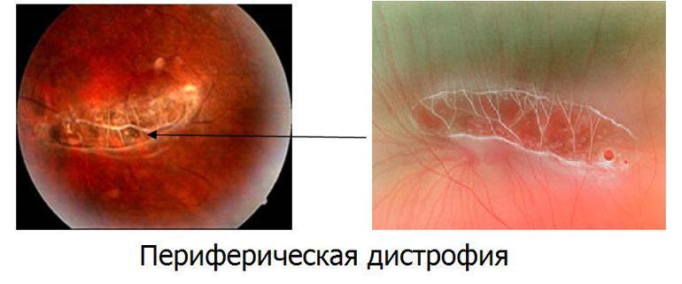 периферическая хориоретинальная дистрофия сетчатки