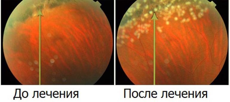 хориоретинальная дистрофия сетчатки