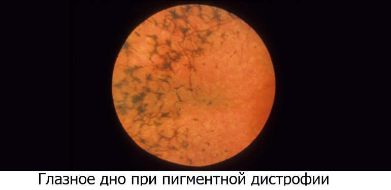Пигментная дистрофия сетчатки (ретинит)