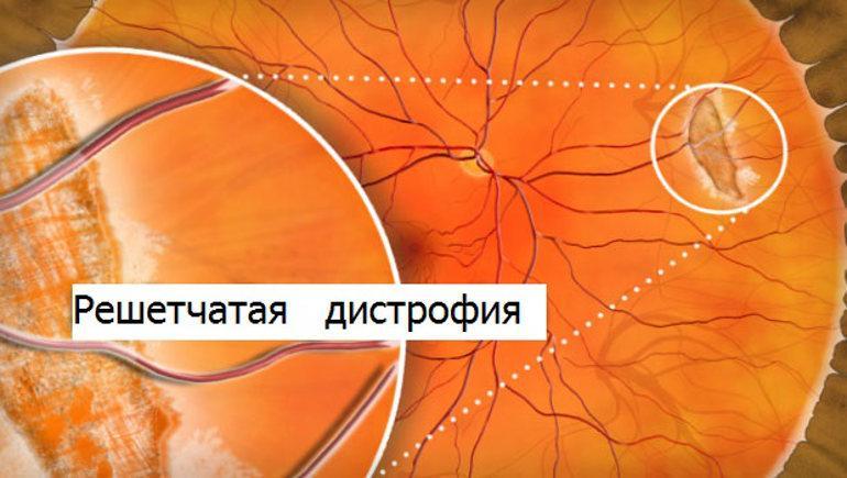 Решетчатая дистрофия сетчатки глаза - эффективное лечение!