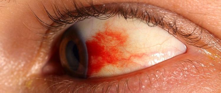 Фоновая ретинопатия сосудов сетчатки глаза - признаки и ...
