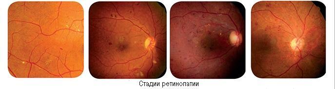 Ретинопатия сетчатки глаза