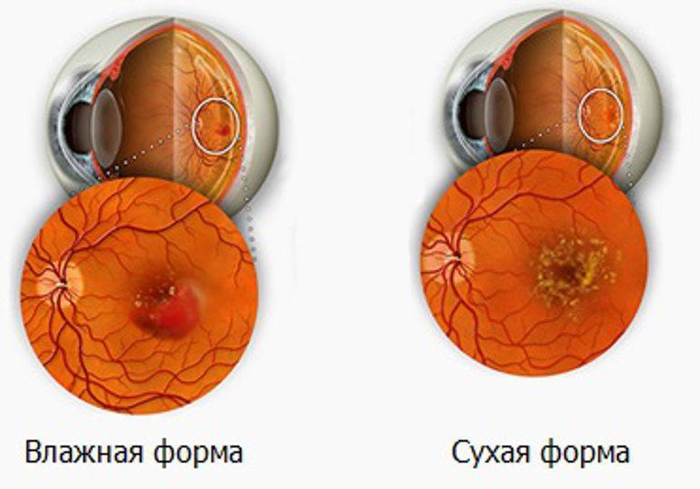 ЦХРД сетчатки - сухая и экссудативные формы