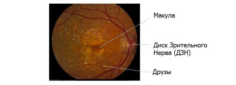 Сухая форма макулодистрофии сетчатки глаза