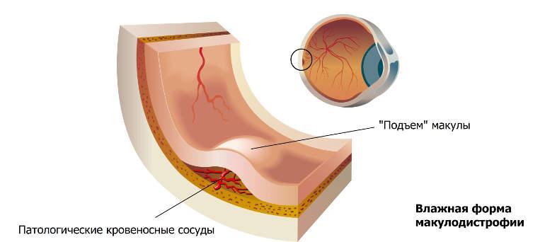 Влажная форма макулодистрофии сетчатки глаза
