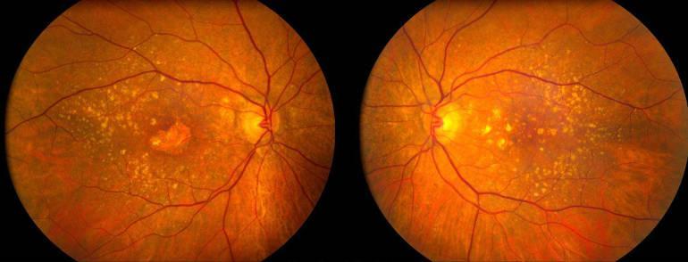 Окт периферии глаза челябинск