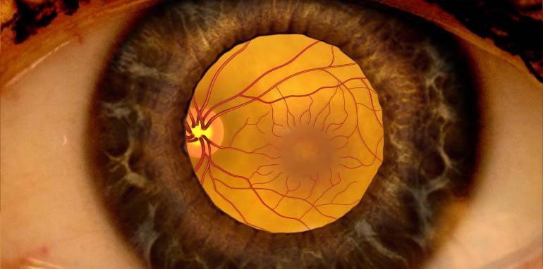 заболевания сетчатки глаза симптомы