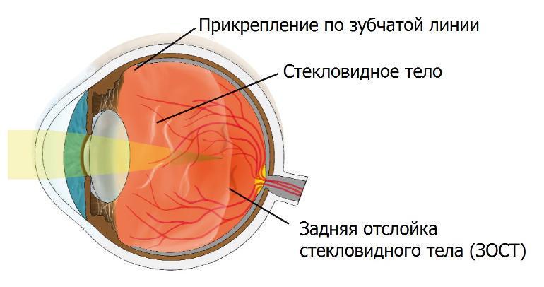 ЗОСТ - задняя отслойка стекловидного тела глаза