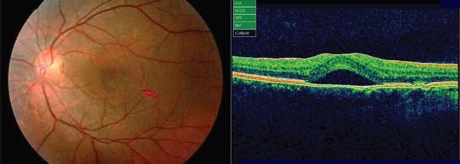 Центрально серозная ретинопатия кто как лечить